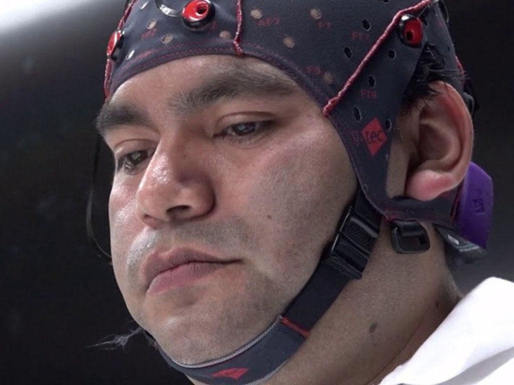 Beyin gücü ilə idarə edilən üçüncü qol